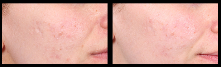 Skin Needling for general rejuvenation & acne scarring