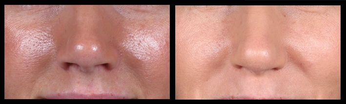 This photo shows a patient before and after having a series of Q-switched YAG laser treatments.