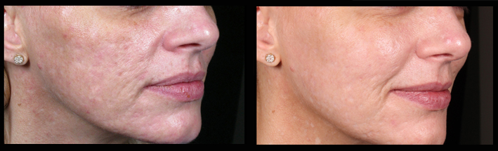 Dermal fillers combined with Venus Viva for acne scarring