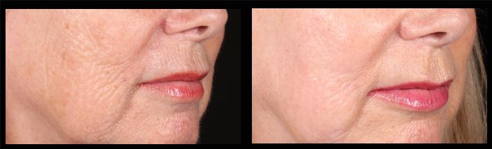 Skin tightening using PSR