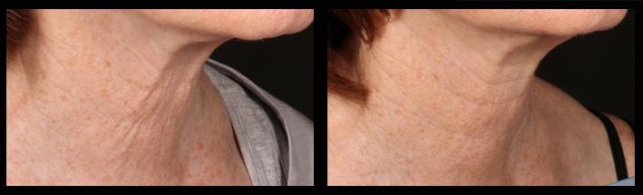 Skin tightening using Venus Viva