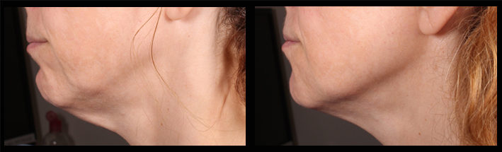Dermal fillers for jawline, chin and turkey neck