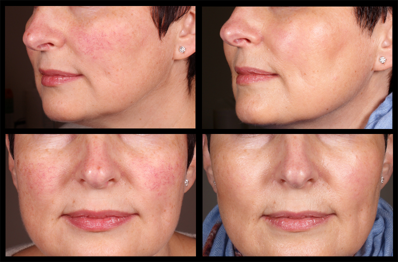 Photos on the left shows cheeks affected by broken blood vessels. Once they were removed by Assoc Prof Greg Goodman using a Vascular Laser the skin colour becomes even as does the bounce of light allowing the skin to glow, as shown by the 'After' photos on the right.