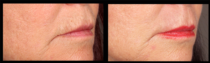 Erbium for upper lip wrinkles