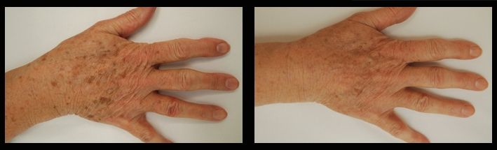 Vascular Laser for sunspots on hands