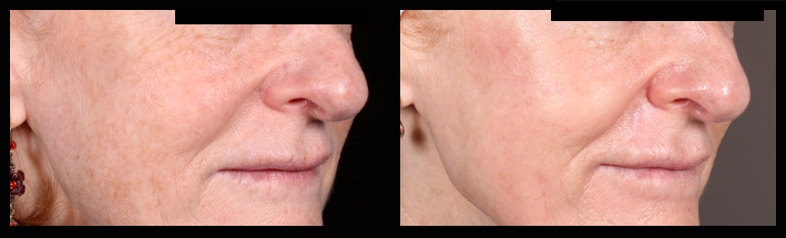 Fraxel Dual for freckles and skin rejuvenation