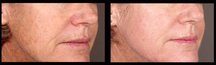 Fraxel Dual for sundamage & pigmentation