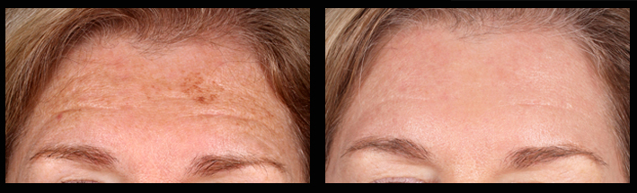 Fraxel Dual for sundamage on forehead