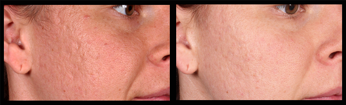 Combination of Venus Viva & Dermal Filler for acne scarring