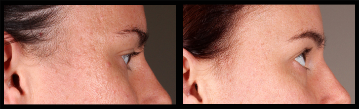 Venus Viva & Dermal Fillers for acne scarring