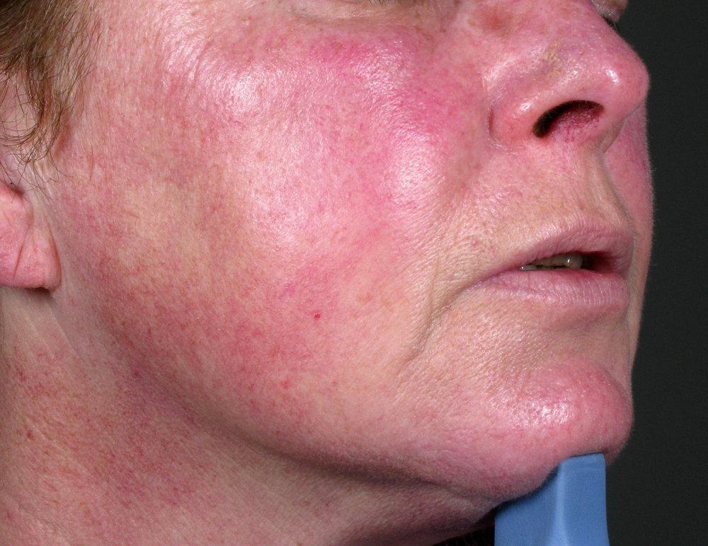 Before Vascular Laser
