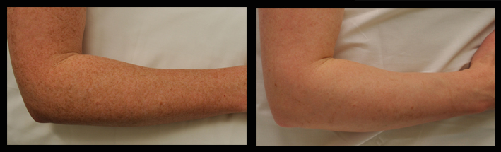 IPL for freckles on arms
