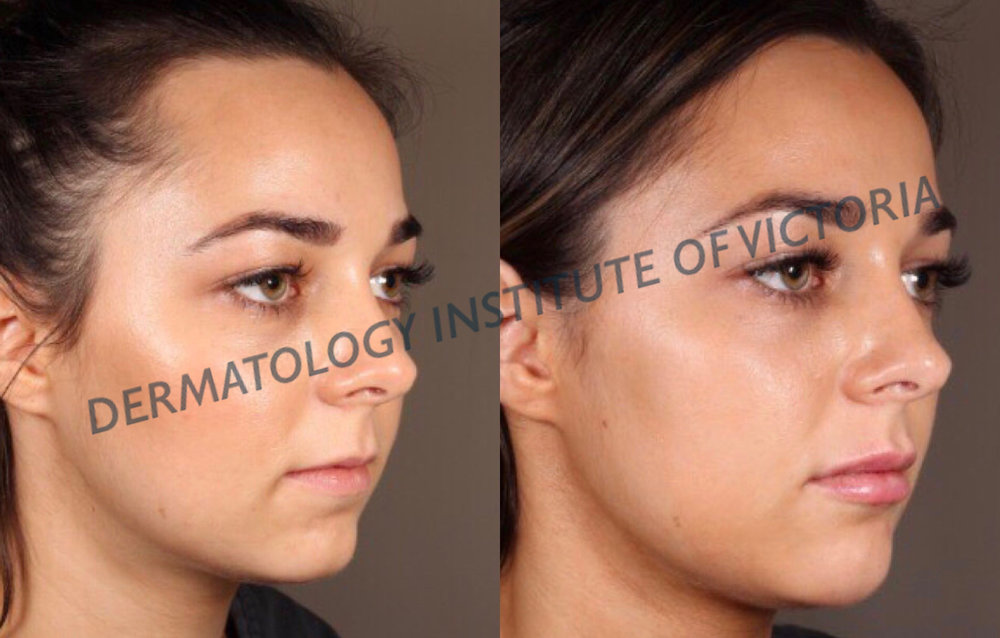 Before (left) & After (right) lip dermal filler treatment at The Dermatology Institute of Victoria. Results achieved by dermatologist Dr Lee Mei Yap.
