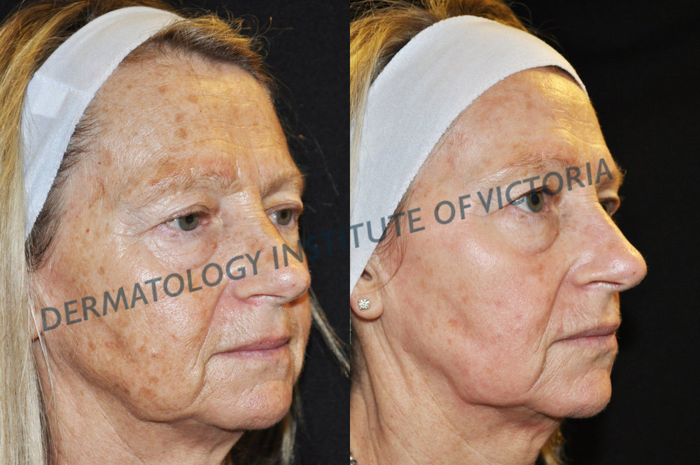Before (left) and After (right) Fraxel Dual Treatment at The Dermatology Institute of Victoria. Results achieved by Procedural Nurse Tara Coetzer RN.