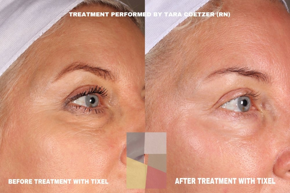 - The latest innovation using thermal technology to treat fine lines and skin texture.