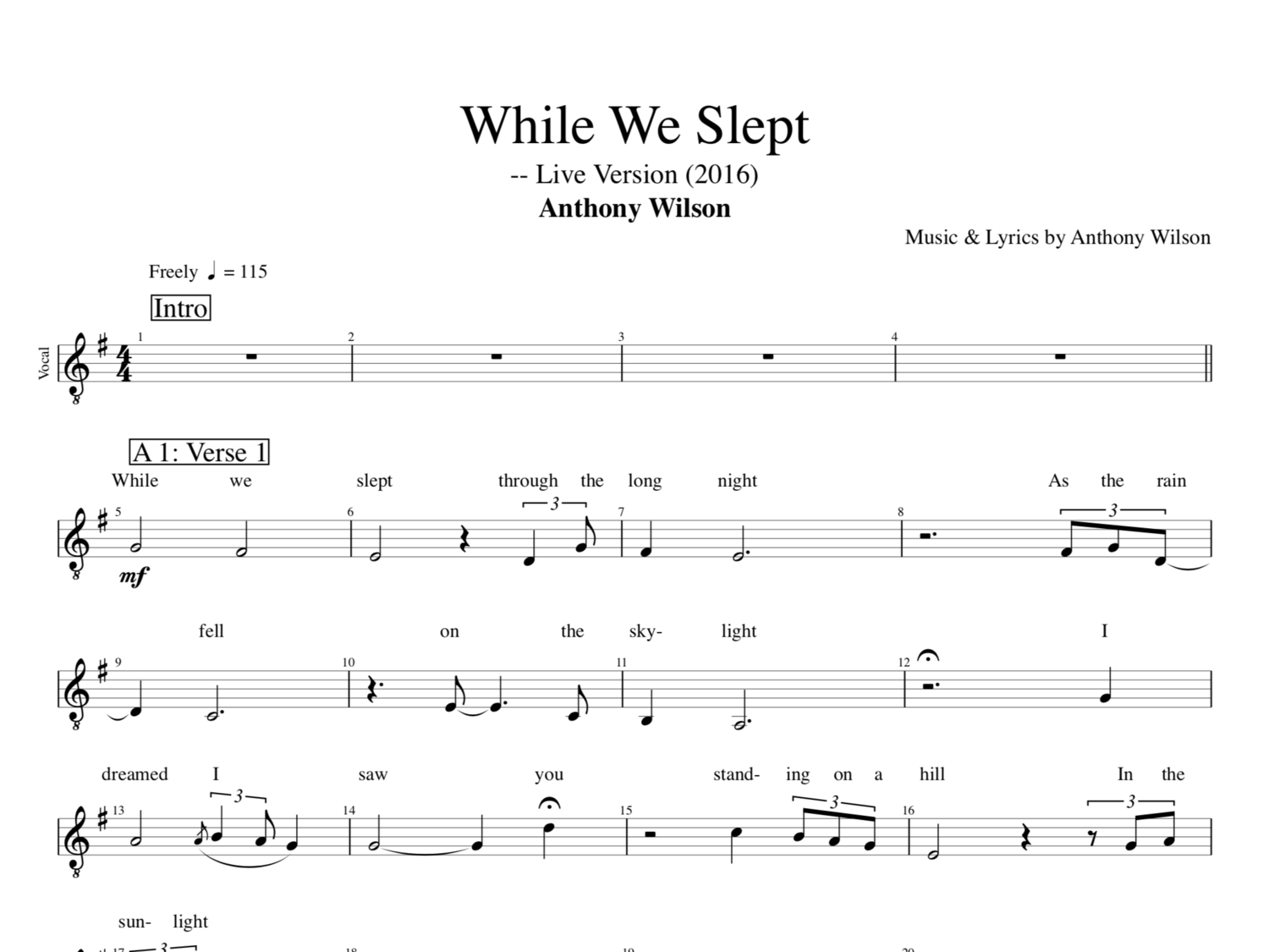 While We Slept Live Version By Anthony Wilson Guitar Vocal