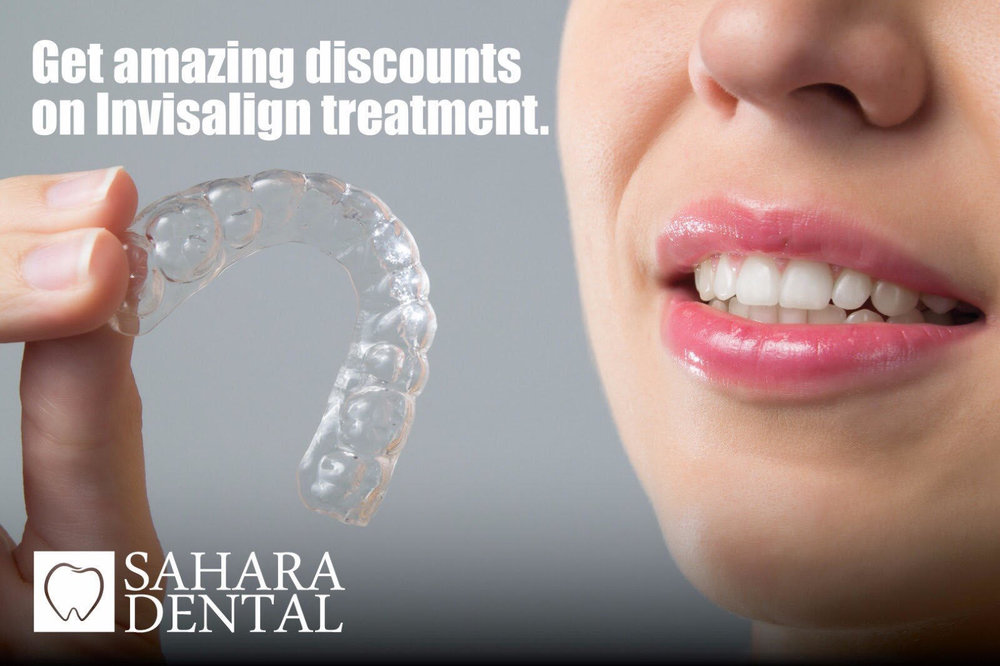 Invisalign Discount/Credit - Buy a 1000 $ credit for 99$  only. Any Invisalign treatment you may have, will have a (-1000$) of the total amount of the treatment fees.