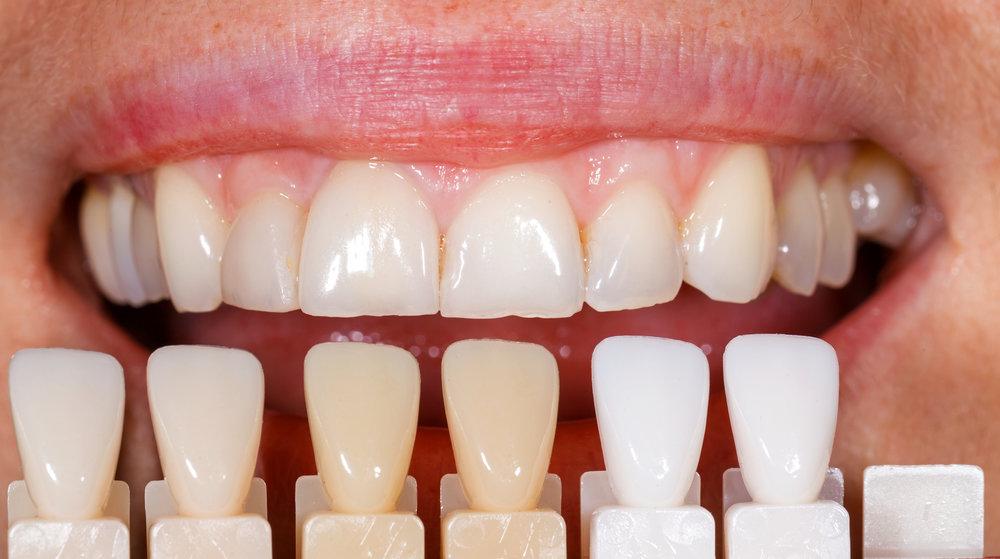 Restore Your Smile -