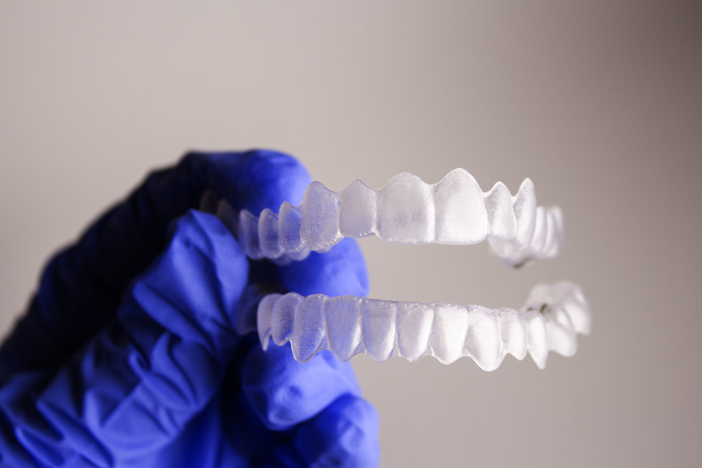Have FREE invisalign consultation, and easy payment plan - Easy payment plan options are designed to provide verity of health care financing with NO interest rates. Contact our office to learn more about invisalign payment plan.