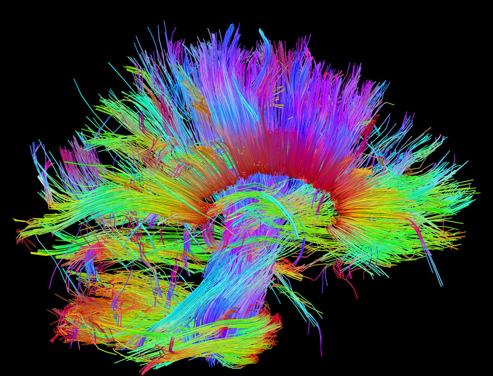 The Human Connectome Project: White matter fiber architecture of the brain.