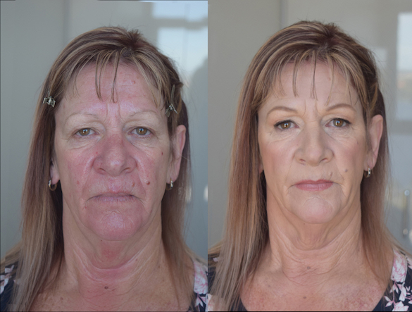 before-and-after-makeup-mother-natural-.jpg