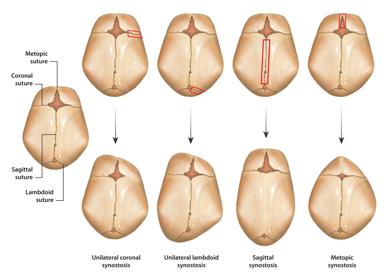 Craniosynostosis — SLK ART