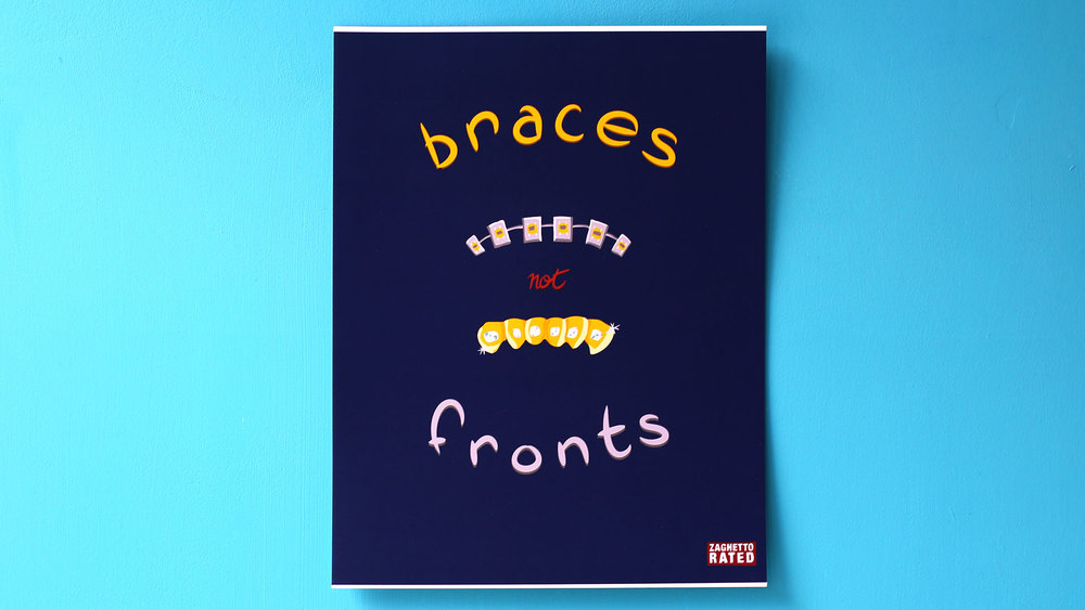 Braces not Fronts