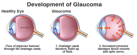 development-of-glaucoma