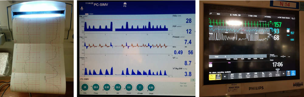 In the first image, the bottom graph (right hand side) shows contractions every minute. The second image is a snapshot of ventilator stats. The final image depicts the stats consistently tracked while in the NICU: heart rate (green), oxygen saturation (blue) and respiratory rate (white).