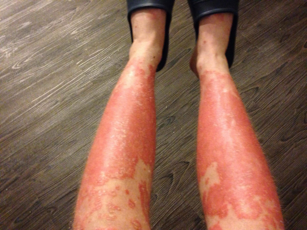 The treatment of severe psoriasis is quite 2