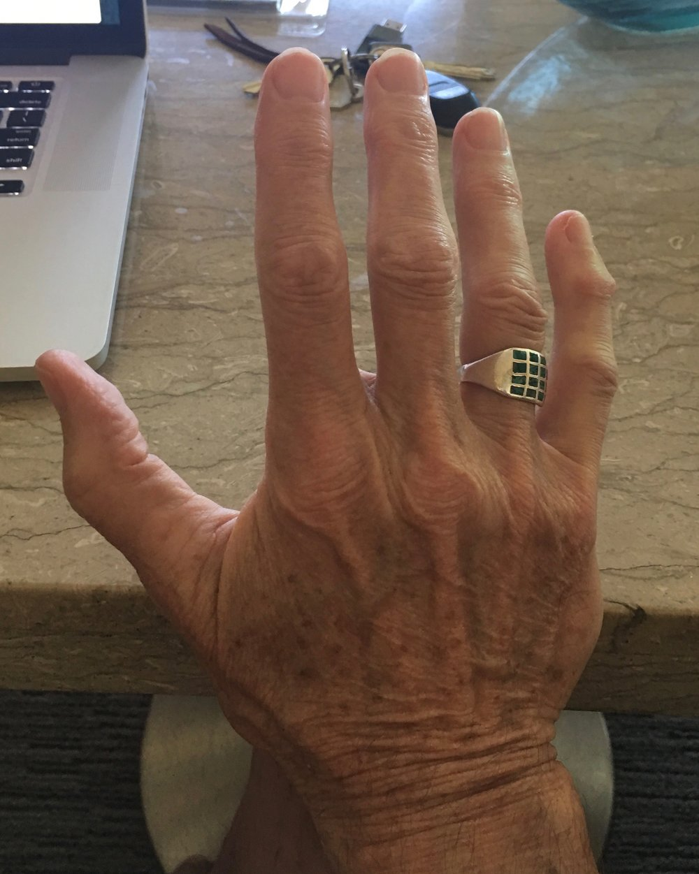 """This is my right hand. I am lucky."" Roger Waters"