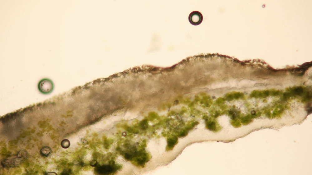 A cross section of a lichen viewed through a microscope and magnified several hundred times.