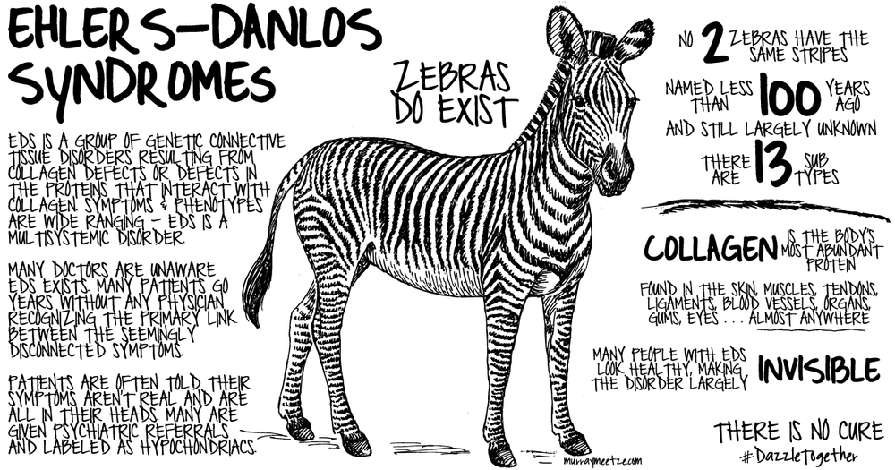 The most common form of Ehlers-Danlos Syndrome (EDS), the hypermobility type, is now to be renamed Hypermobile Ehlers-Danlos Syndrome (hEDS).