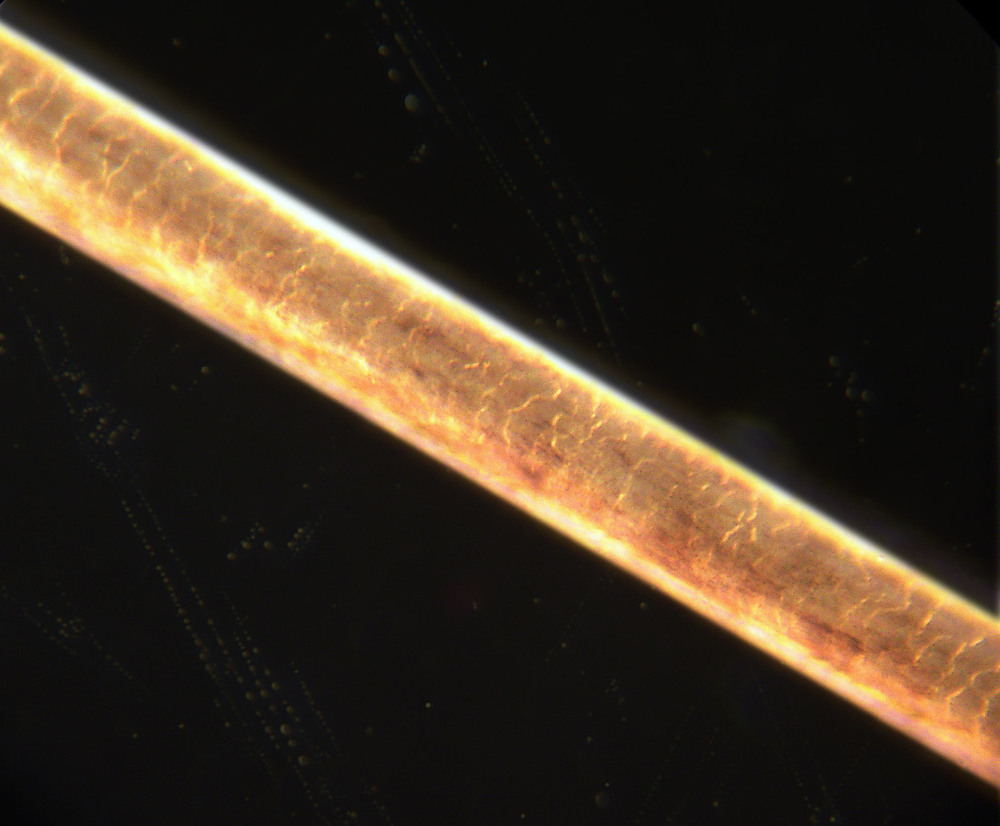 This is a human hair,  you can see the overlapping cells of the cuticle layer that can open up and expose the inner part of the hair.