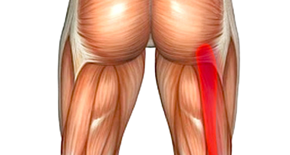 A hamstring injury is a real pain in the butt. Image from here.