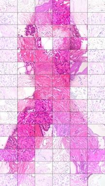 breast cancer ribbon_histology copy.jpg