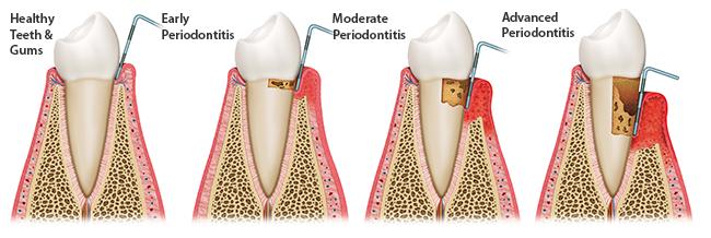 Progression of periodontal disease.