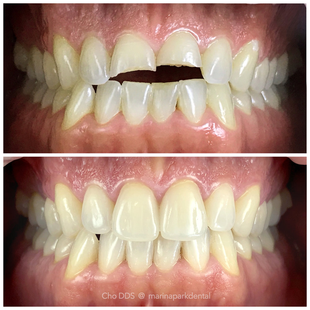 Emergency Treatment Crowns - Two front crowns were placed for fractured teeth due to trauma.