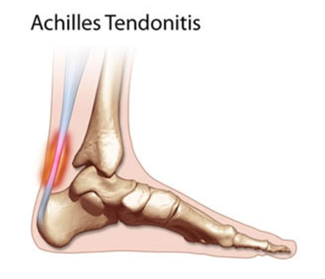 Achilles Tendonitis Highett Podiatry