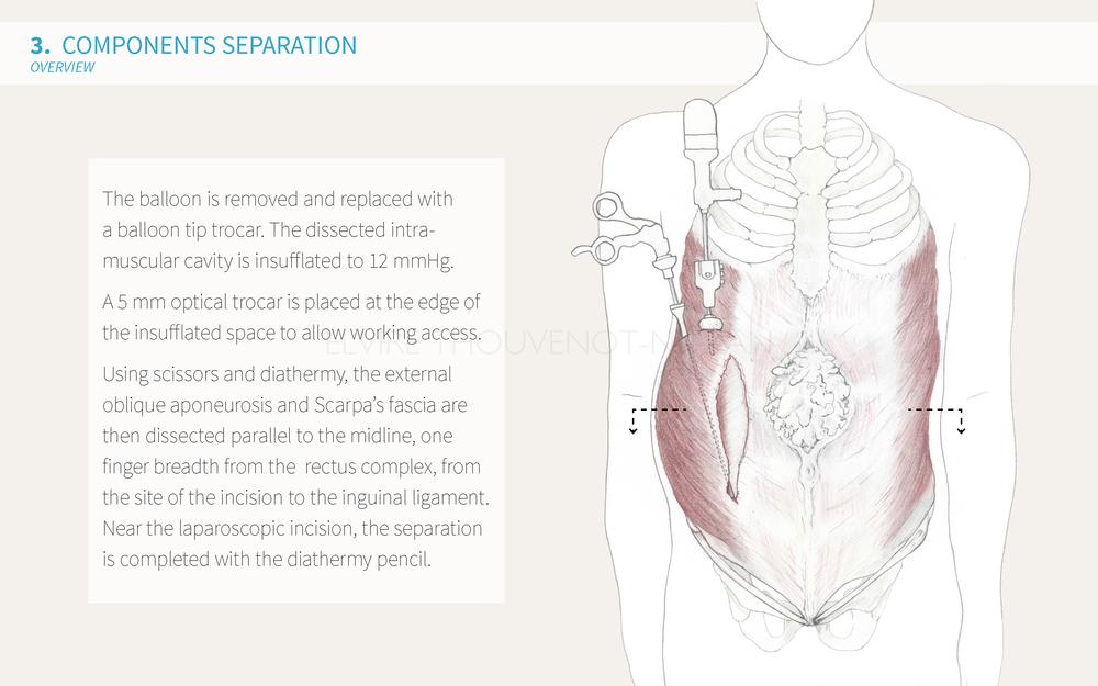 Elvire Thouvenot Components Separation Cuschieri Presentation_Page_18.png