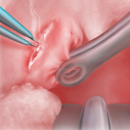 Tonsillectomy: A Surgical Sequence   An illustrated step-by-step guide to tonsil removal.