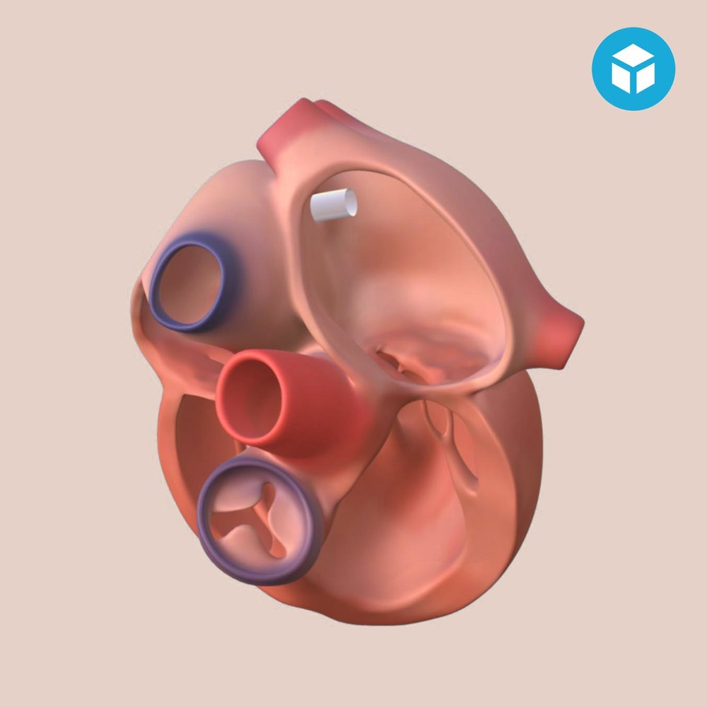Percutaneous Mitral Valve Repair   An interactive, animated 3D model and its complementary animation video illustrating the functioning of a new medical device.   Coming soon
