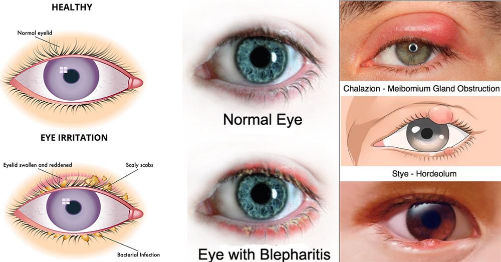 Blepharitis Efei