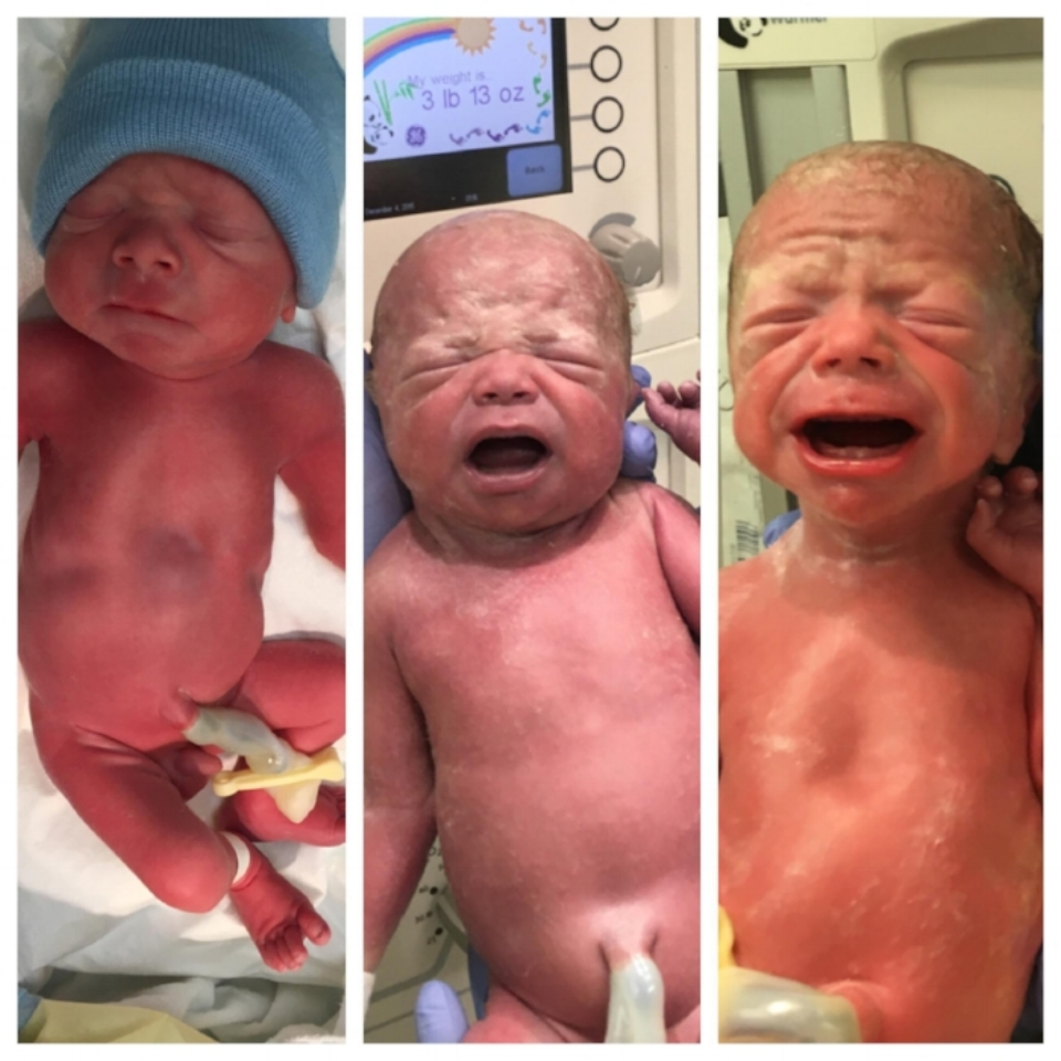 Birth Pictures. (Left) Xander @ 4lbs, 6oz; (Middle) Isabella @ 3lbs, 13oz; (Right) Elly @2lbs, 15oz