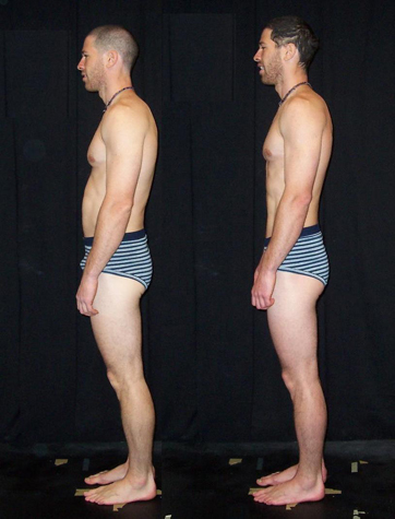 Before and After result of Rolfing. Better posture and stronger structure.
