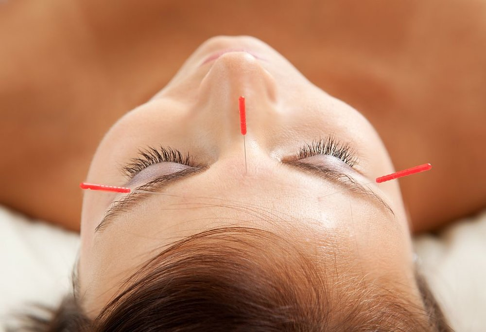 Anti-Aging Acupuncture Treatment