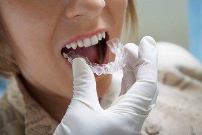 Town Center Dentistry is home to San Diego's Best Orthodontists. We have braces or Invisalign to fix a crooked smile.