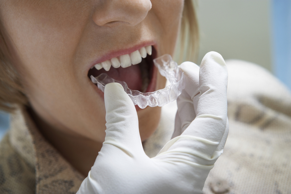 Invisalign is a simple and easy way to get straight teeth and a straight smile. Town Center Dentistry has the top invisalign experts and orthodontists in San Diego