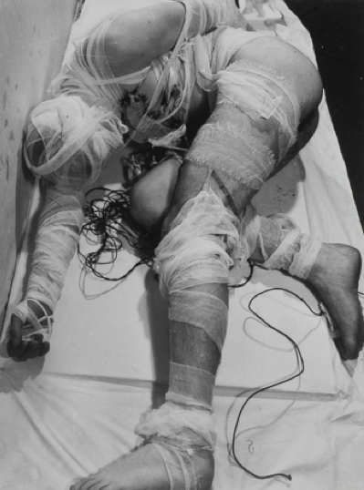 """Rudolf Schwarzkogler, Aktion """"mit einem menschlichen Körper"""",  Summer 1965"""
