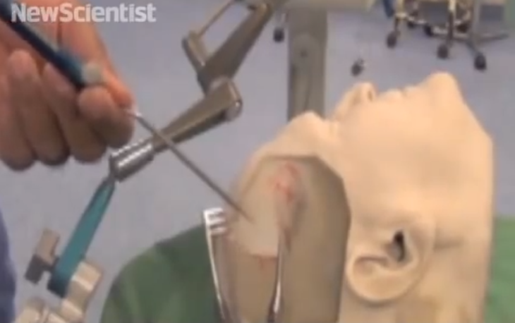 3D printed skull helps brain surgeons. Source: NewScientist/Youtube.com